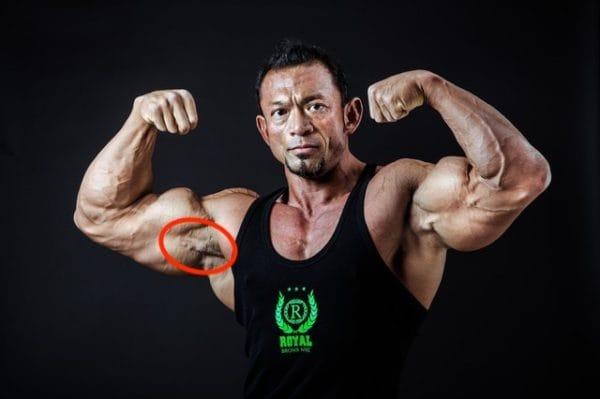 腕立て伏せで鍛えられる部位⑥烏口腕筋