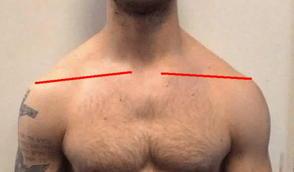三角筋を鍛えるメリット②なで肩が治る