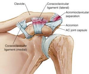 肩鎖関節の炎症・変化