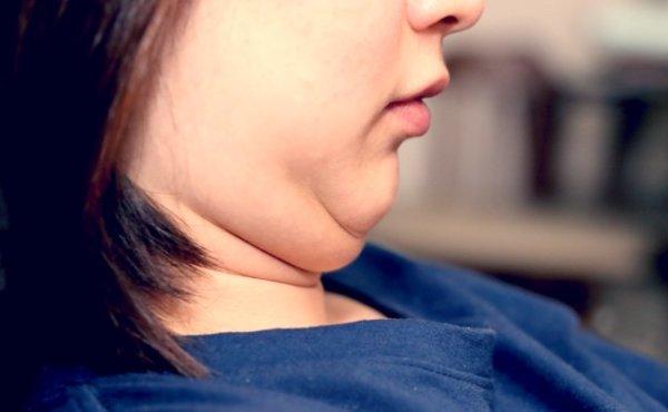 腹筋の筋力の低下は「二重アゴ」の原因にもなる!