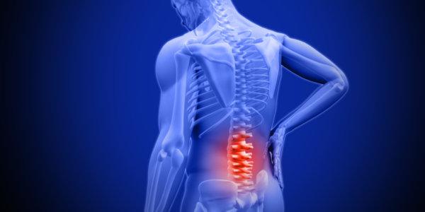 筋力低下が理由の腰痛で、間接的原因になる筋肉群について
