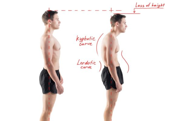腹筋の筋力が低下すると「姿勢悪化」により腰痛を引き起こす