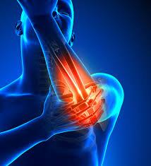 「腕橈骨筋」のトレーニングに取り組む際の注意点