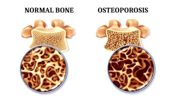 筋トレの効果・メリット⑭「骨粗しょう症予防」