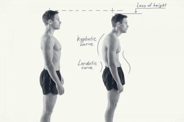 筋トレの効果・メリット⑮「猫背・姿勢改善」